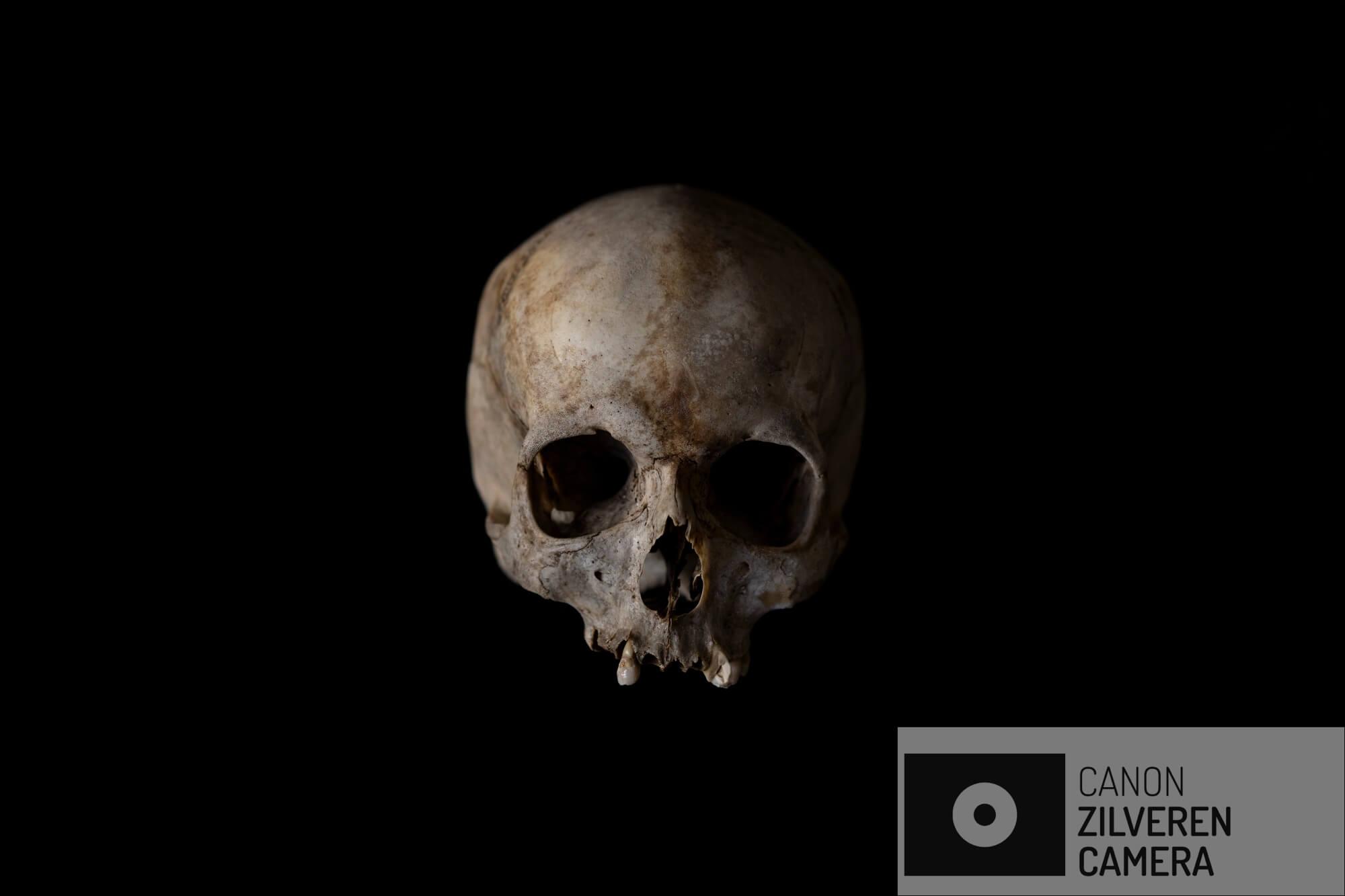 Het schedel van een ongeïdentificeerde volwassen man gevonden in 2017, ligt in het mortuarium van Johannesburg for identificatie doeleinden. Zodra een demografisch profiel is aangemaakt, zal het schedel naar het identificatie centrum van de Zuid-Afrikaanse politie worden gebracht om een reconstructie van het gezicht te maken.