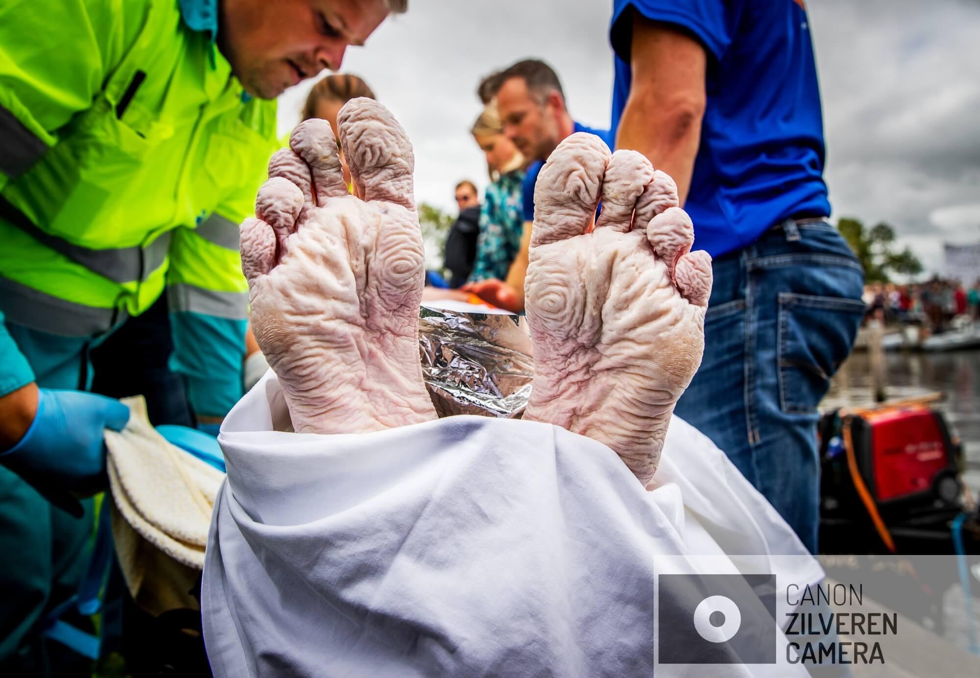 BIRDAARD - De voeten van Maarten van der Weijden nadat hij zijn zwemtocht langs elf Friese steden heeft moeten staken. Met zijn zwemtocht haalde de olympisch zwemmer geld op voor kankeronderzoek.
